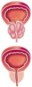 Prostata-înainte-și-după-aplicarea-ProsTect
