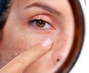 cauzele imbatranirii pielii
