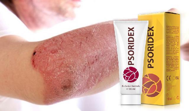 crema-psoriazis-psoridex-pret-pareri